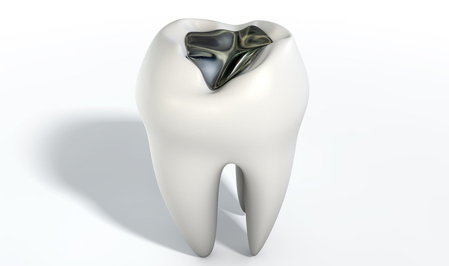 Metal Tooth Filling – Replace It Or Not
